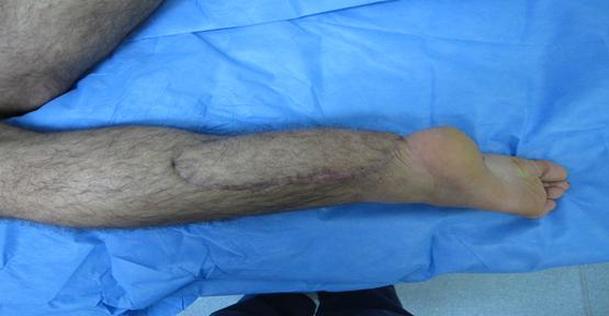 Mikrocerrahi Usulu 'perforator flep' cerrahisi Yapılıyor