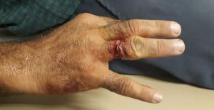 Urfa'da Taktığı Yüzük Parmağına Saplandı