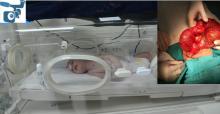 Urfa'da Yeni Doğan Bebekten Öyle Bir Şey Çıktı Ki!