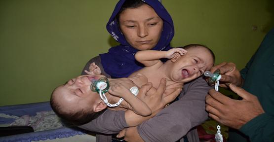 Yapışık Siyam İkizler tedavi için  Ankara'ya gönderildi